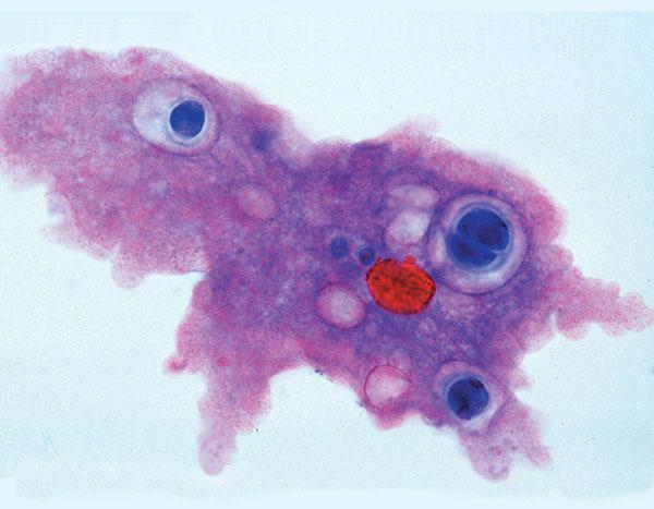MP: Zoologie, série courte. Protozoaires